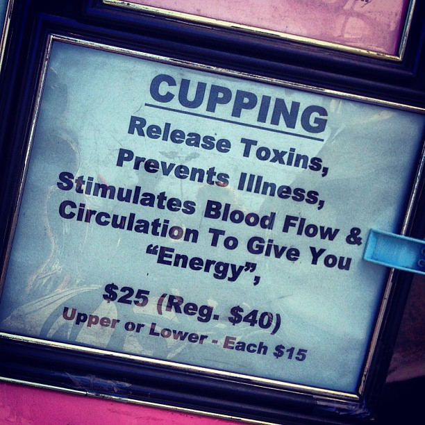 Looks like you have to return to LA for classic #bankes! #cupping #helftviateytnbankes